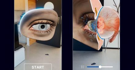 Bild: URSAPHARM Augmented Reality-App